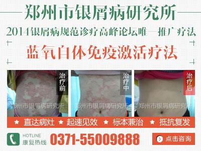 郑州治疗牛皮癣较好的医院
