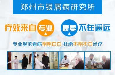 郑州市哪个医院治疗银屑病正规