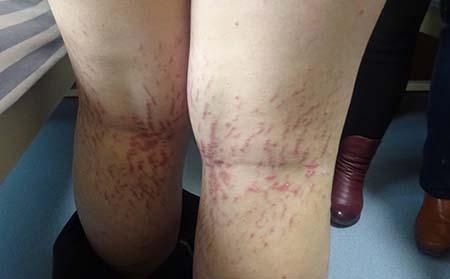 患者的皮肤上出现了牛皮癣红斑要怎么办