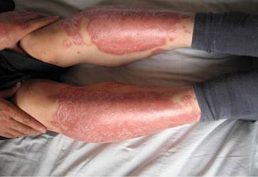 银屑病的症状有哪些