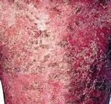 牛皮癣的典型症状有什么