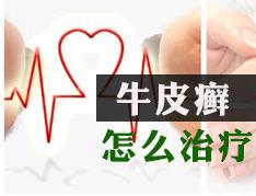 郑州银屑病治疗医院