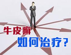 郑州银屑病研究所治疗好吗?