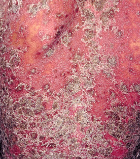 牛皮癣患者治疗的错误有哪些