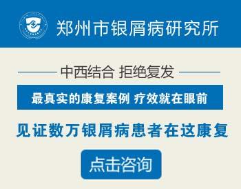 郑州市哪里治疗牛皮癣效果好